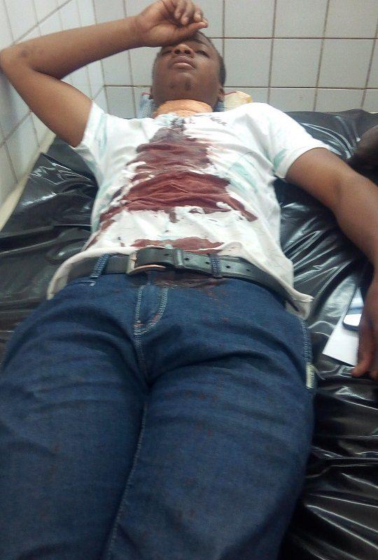 Quatre étudiants de l'université de Toukra blessés par un gendarme