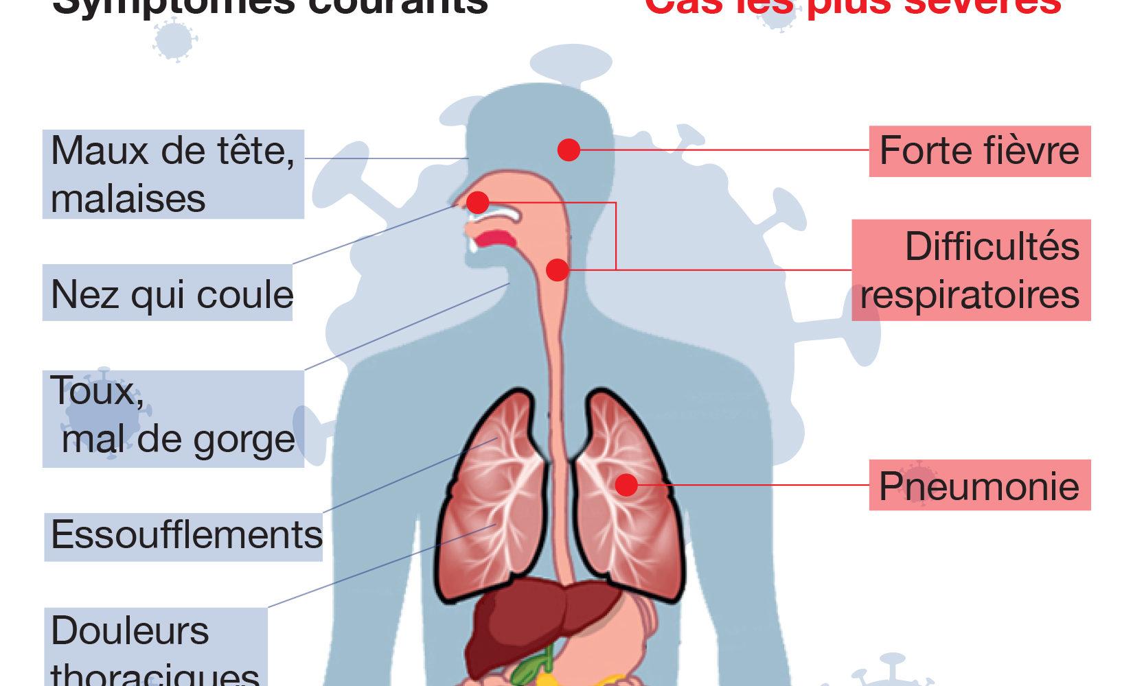 Les symptômes du Coronavirus 1