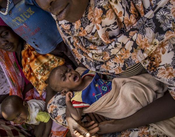 5,9 millions de personnes n'ont pas accès à une alimentation saine, 4,4 millions d'autres souffrent de malnutrition cette année au Tchad