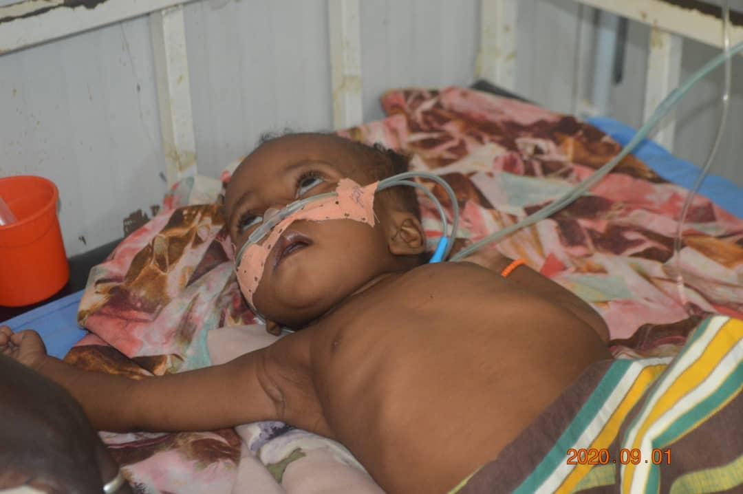 La prise en charge de la malnutrition au Tchad, notre défi commun 1